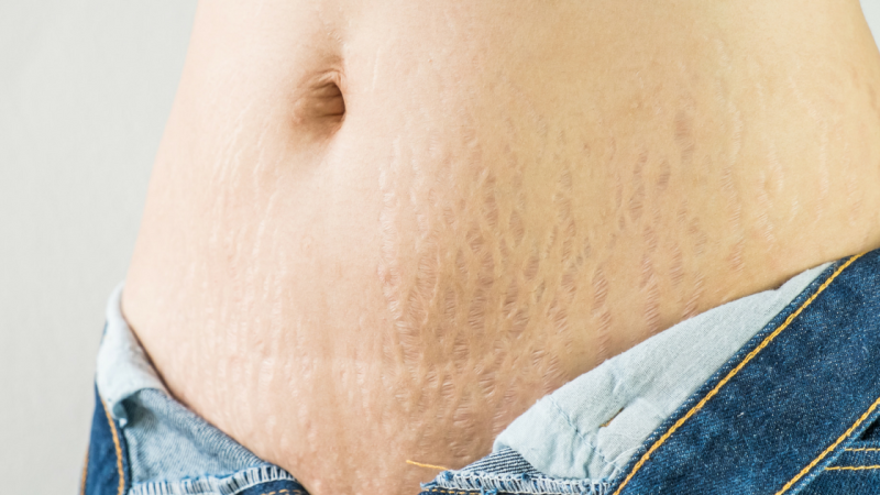 Start_A_Career_Scar_Stretchmark_Camouflage_Title_Image_1400x
