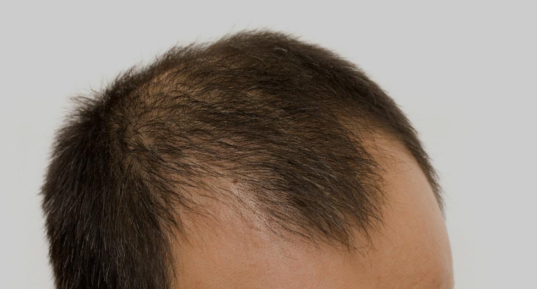scalp micropigmentation procedures for men