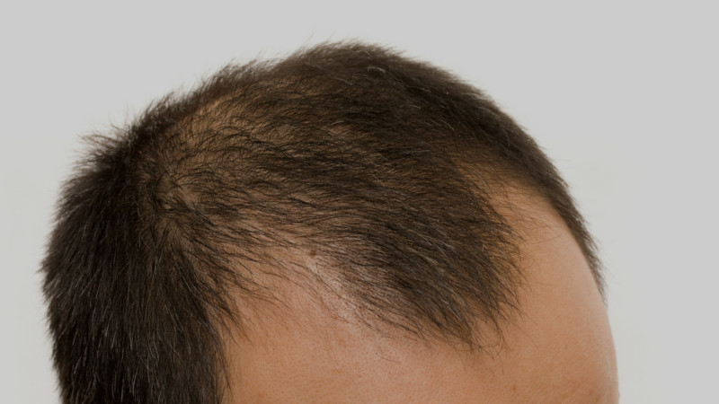 scalp micropigmentation procedures for men