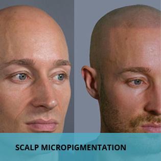 scalp micropigmentation in males