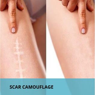 scar camouflage training program