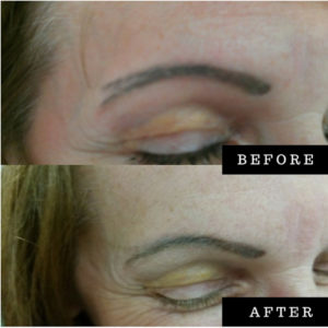 Scar Camouflage Training Course | Academy of Advanced Cosmetics